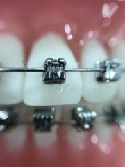 Mennyibe kerül a fogszabályozás felnőtteknek?