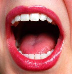 Milyen szempontok alapján válasszak fogorvost?